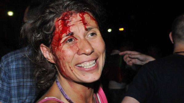 #ДАНСwithme 40: Полицията окървави протеста (галерия)