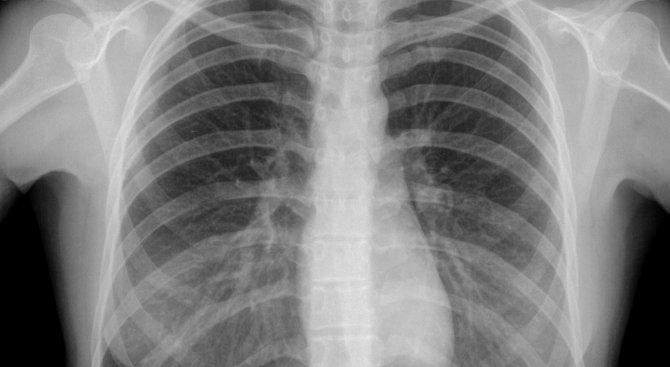 България е на първо място в Европа по смъртност от рак