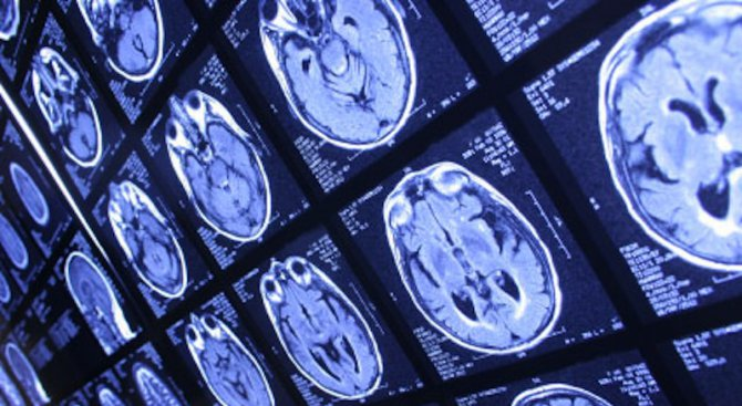 Бъгове в софтуера на магнитно-резонансните томографи компроментират 40 000 изследвания