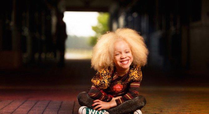 Момиченцето албинос, което покори модния свят