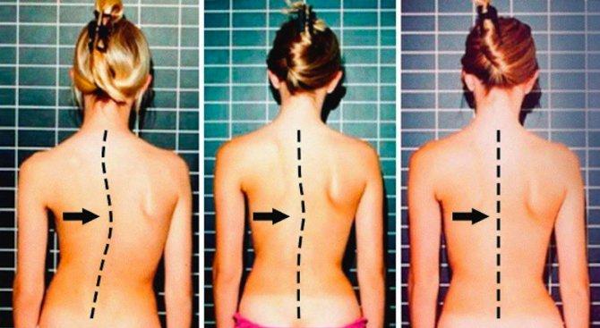 7 упражнения за здрав гръбначен стълб (снимки)