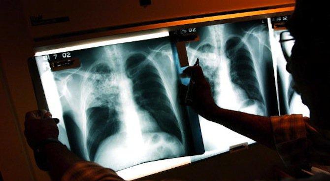 Изследват нови технологии за ранно откриване и диагностика на рака на млечната жлеза