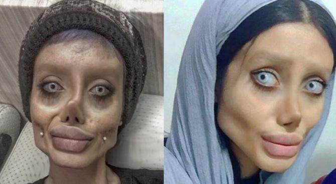 Иранка се подложи на 50 пластични операции, за да заприлича на Анджелина Джоли (снимки)