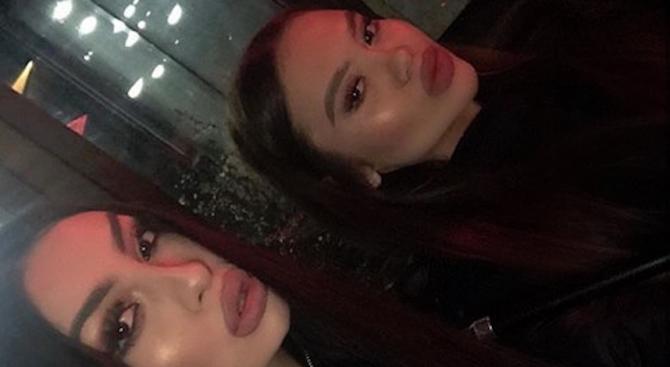 Дъщерите на Анелия и Лияна шокираха с напомпани усти