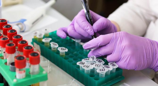 Безплатни изследвания за ХИВ – СПИН ще има в Сливен