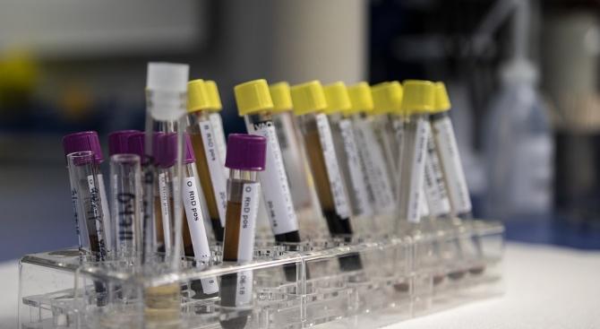 """РЗИ следи болните от хепатит А в квартал """"Средна кула"""" в Русе"""