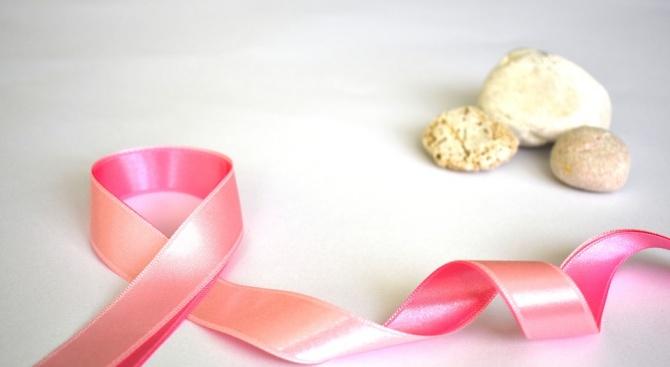 Екомузеят в Русе ще бъде осветен в розово за кампанията за борба с рака на гърдата