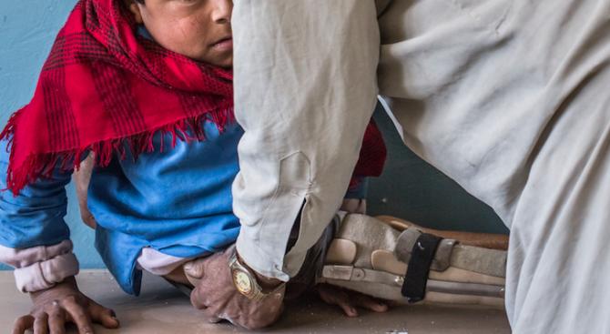 В Малайзия бе регистриран първият случай на детски паралич от 27 години