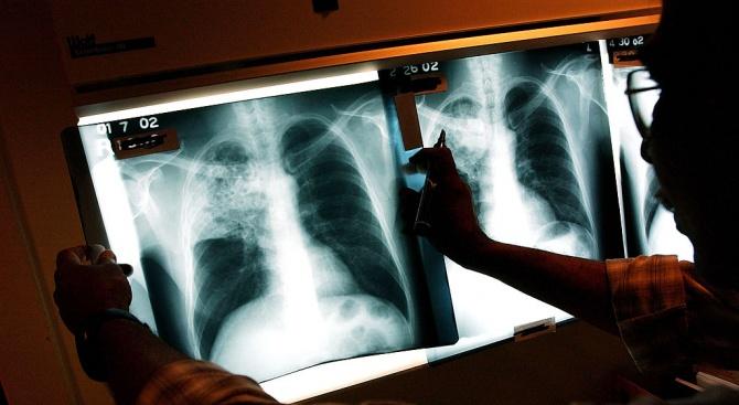 Три случая на туберкулоза за седмица в Смолян