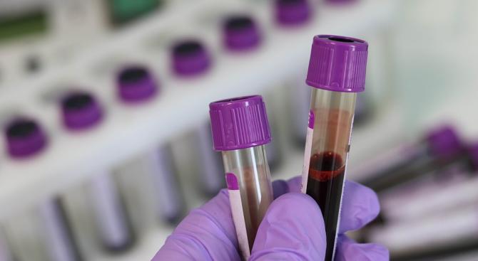 Епидемичен взрив от хепатит А в Хасковска област