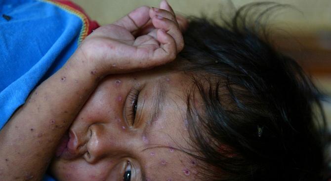 За седмица: 45 случая на варицела в Габровско