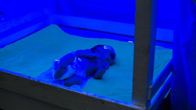 Първо новородено – жертва на COVID-19  в РЮА