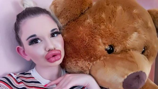 """БГ Барби с 21-ва операция, кандидатства за """"Гинес"""" за най-огромни устни"""