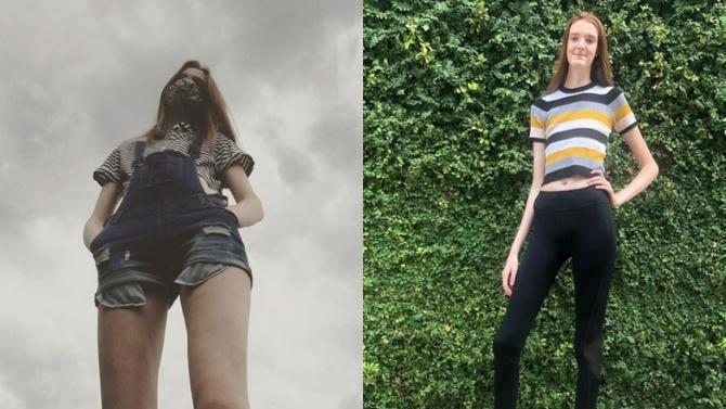 17-годишна американка е с най-дългите крака в света