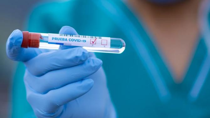 """В болницата """"Св.Марина"""" във Варна са разкрити 284 легла за пациенти с доказан COVID-19"""