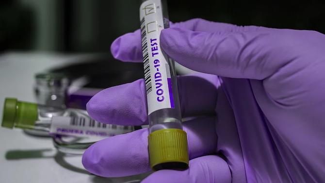 Референтна лаборатория за PCR тестове заработи в COVID болницата в Пловдив