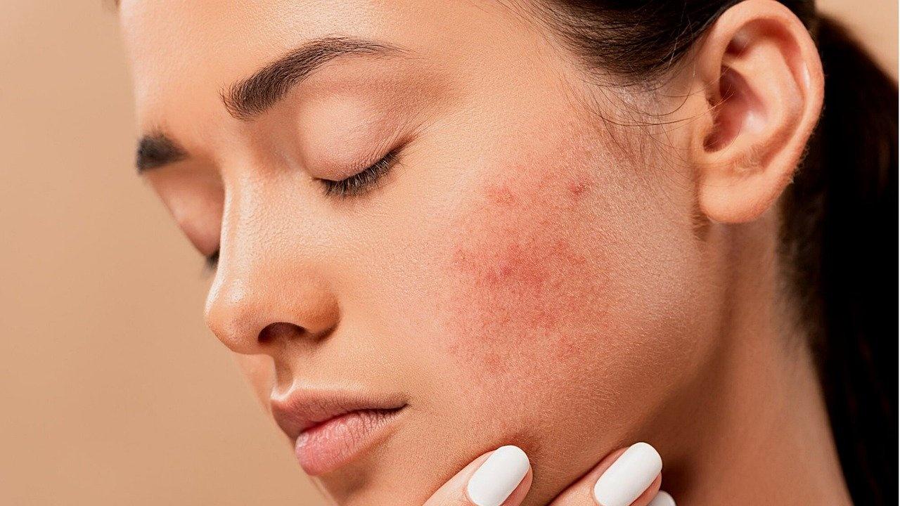 Пандемията от COVID-19 затрудни ранната диагностика на рака на кожата според лекари