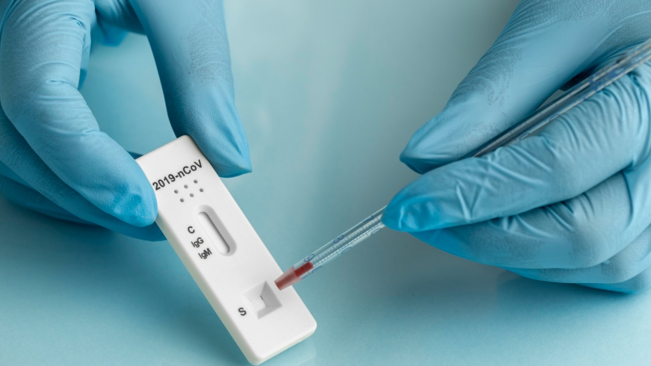 1246 са новите случаи на коронавирус