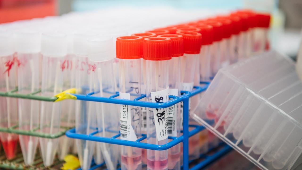 В област Сливен са диагностицирани 86 нови болни през последното денонощие