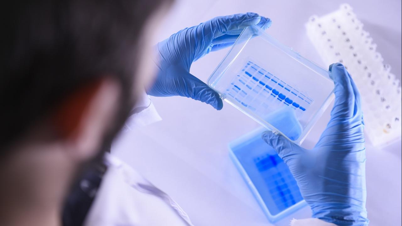 7400 доброволци ще участват в изпитанията на турската ваксина Турковак като бустерна доза