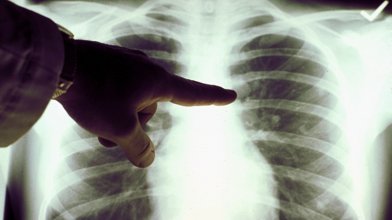 Дете се оказа едновременно с две взаимоизключващи се диагнози от две болници у нас