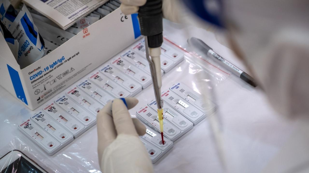 Вижте кои са лабораториите, в които можете да си направите безплатно бърз антигенен тест