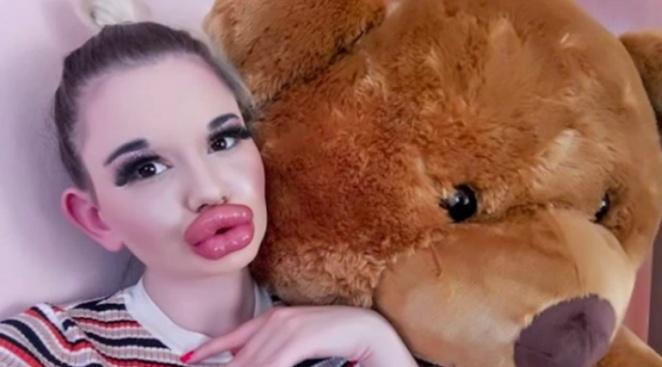 Бихте ли уголемили устните си?
