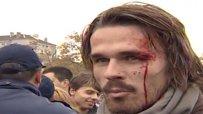 Протестиращ: Полицаите ме събориха и ритаха