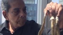 Човекът с най-дългите нокти на света, си ги отряза